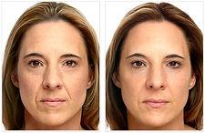 hilos-tensores-rostro.jpg