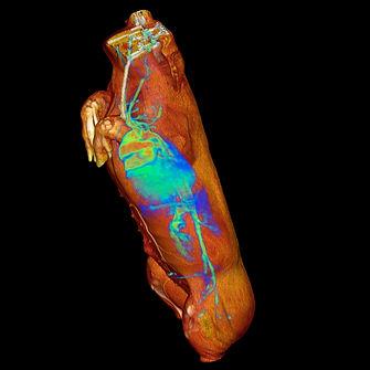 PET CT 1h pig_NIH_3D VR Image cropped.jp