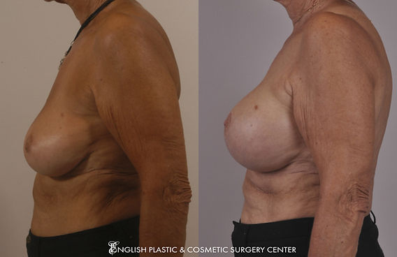 Before and after images of a woman after undergoing a breast augmentation (breast implants) by Dr. Jim English at English Plastic & Cosmetic Surgery Center in Little Rock, AR | Case 10