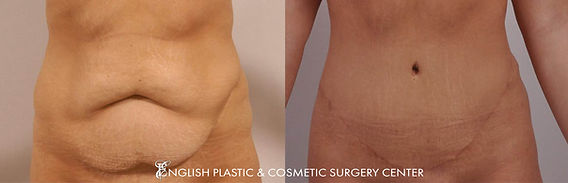Before and after images of a woman after undergoing a tummy tuck (abdominoplasty) by Dr. Jim English at English Plastic & Cosmetic Surgery Center in Little Rock, AR | Case 2