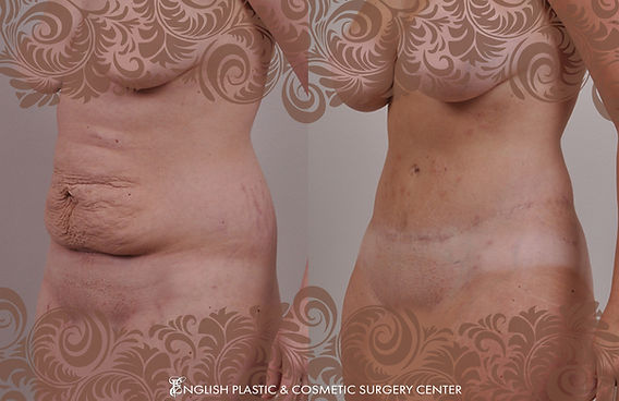 Before and after images of a woman after undergoing a tummy tuck (abdominoplasty) by Dr. Jim English at English Plastic & Cosmetic Surgery Center in Little Rock, AR | Case 1