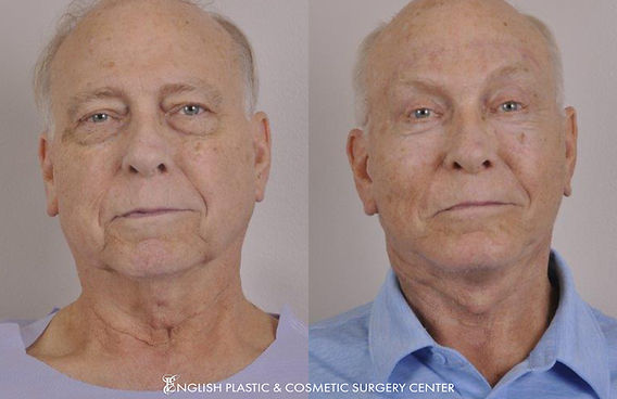 Before and after images of a man after undergoing eyelid surgery (blepharoplasty), fat transfer, chemical peel, CO2 laser skin resurfacing by Dr. Jim English at English Plastic & Cosmetic Surgery Center in Little Rock, AR | Case 163