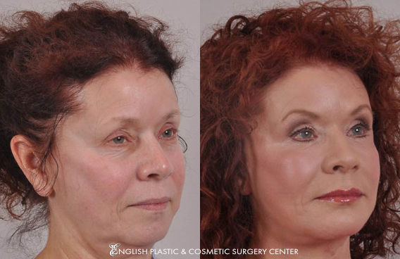 Before and after images of a woman after undergoing a facelift by Dr. Jim English at English Plastic & Cosmetic Surgery Center in Little Rock, AR | Case 4
