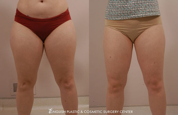 Before and after images of a woman after undergoing liposuction by Dr. Jim English at English Plastic & Cosmetic Surgery Center in Little Rock, AR | Case 1