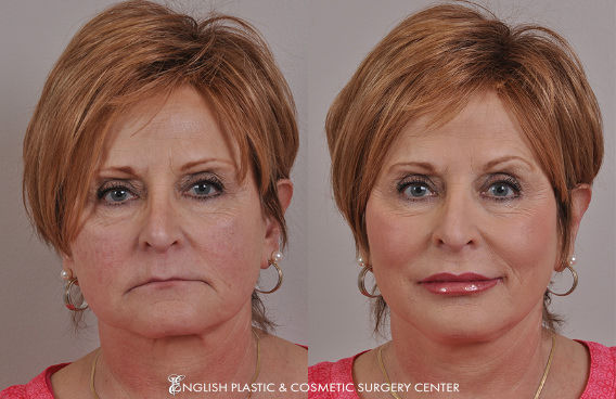 Before and after images of a woman after undergoing a filler procedure by Dr. Jim English at English Plastic & Cosmetic Surgery Center in Little Rock, AR | Case 4