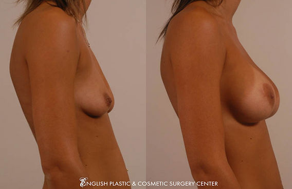 Before and after images of a woman after undergoing a breast augmentation (breast implants) by Dr. Jim English at English Plastic & Cosmetic Surgery Center in Little Rock, AR | Case 3