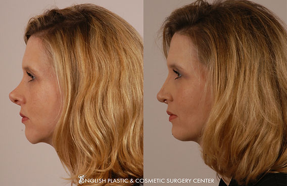 Before and after images of a woman after undergoing a chin augmentation by Dr. Jim English at English Plastic & Cosmetic Surgery Center in Little Rock, AR | Case 9