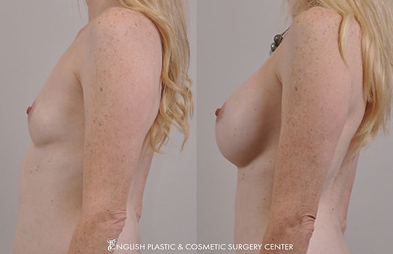 Before and after images of a woman after undergoing a breast augmentation (breast implants) by Dr. Jim English at English Plastic & Cosmetic Surgery Center in Little Rock, AR | Case 17