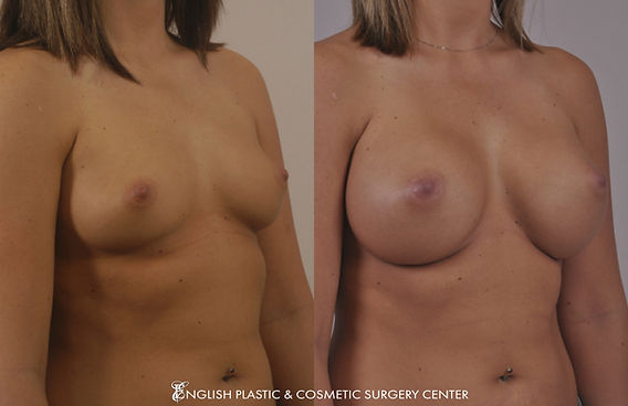 Before and after images of a woman after undergoing a breast augmentation (breast implants) by Dr. Jim English at English Plastic & Cosmetic Surgery Center in Little Rock, AR | Case 11