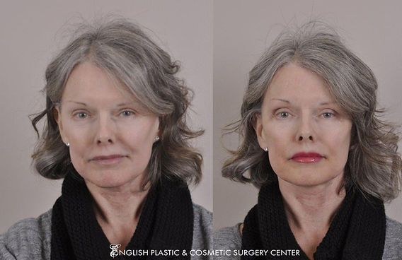 Before and after images of a woman after undergoing a filler procedure by Dr. Jim English at English Plastic & Cosmetic Surgery Center in Little Rock, AR | Case 6