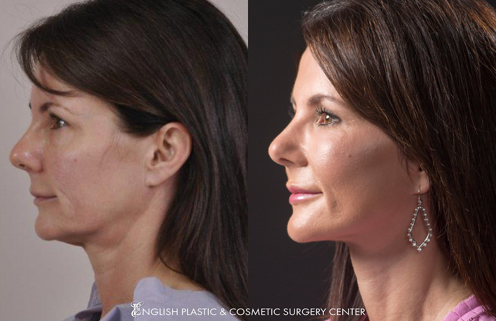 Before and after images of Dr. English's patient after undergoing a lower facelift, lower eyelid surgery, fat transfer to face, and a chemical peel.