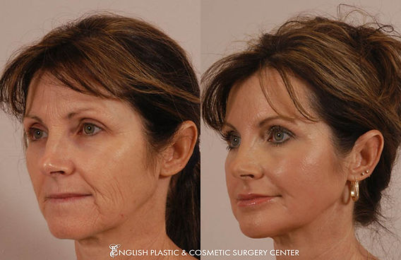 Before and after images of a woman after undergoing a chin augmentation by Dr. Jim English at English Plastic & Cosmetic Surgery Center in Little Rock, AR | Case 1