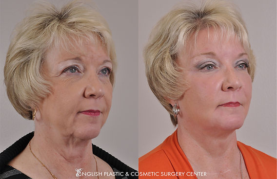 Before and after images of a woman after undergoing a brow lift by Dr. Jim English at English Plastic & Cosmetic Surgery Center in Little Rock, AR | Case 15