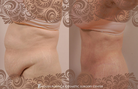 Before and after images of a woman after undergoing a tummy tuck (abdominoplasty) by Dr. Jim English at English Plastic & Cosmetic Surgery Center in Little Rock, AR | Case 5