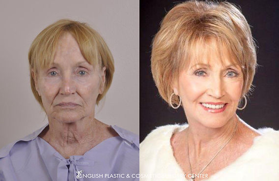 Before and after images of a woman after undergoing a facelift by Dr. Jim English at English Plastic & Cosmetic Surgery Center in Little Rock, AR | Case 14
