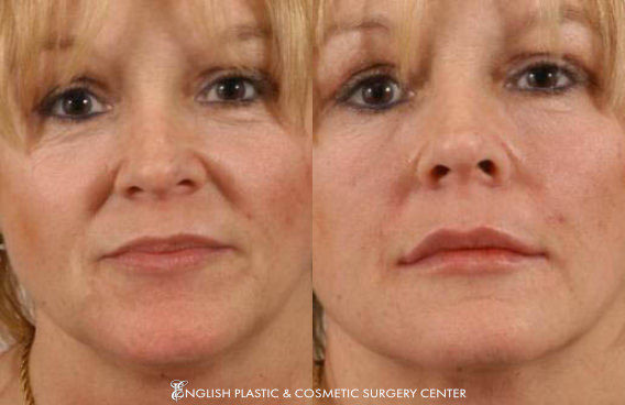 Before and after images of a woman after undergoing a filler procedure by Dr. Jim English at English Plastic & Cosmetic Surgery Center in Little Rock, AR | Case 1