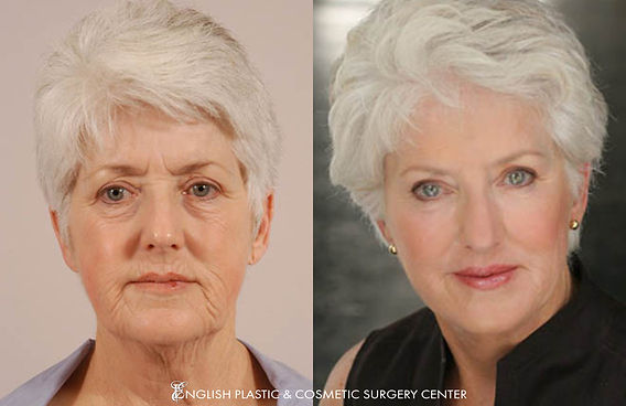 Before and after images of a woman after undergoing a brow lift by Dr. Jim English at English Plastic & Cosmetic Surgery Center in Little Rock, AR | Case 4
