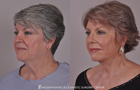 Before and after images of a woman after undergoing eyelid surgery (blepharoplasty) by Dr. Jim English at English Plastic & Cosmetic Surgery Center in Little Rock, AR | Case 4