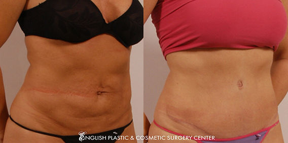 Before and after images of a woman after undergoing a tummy tuck (abdominoplasty) by Dr. Jim English at English Plastic & Cosmetic Surgery Center in Little Rock, AR | Case 3