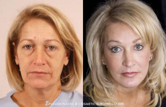 Before and after images of a woman after undergoing a chemical peel by Dr. Jim English at English Plastic & Cosmetic Surgery Center in Little Rock, AR | Case 1