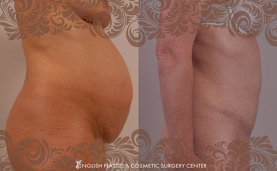 Before and after images of a woman after undergoing a tummy tuck (abdominoplasty) by Dr. Jim English at English Plastic & Cosmetic Surgery Center in Little Rock, AR | Case 9