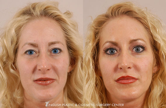 Before and after images of a woman after undergoing lip augmentation surgery by Dr. Jim English at English Plastic & Cosmetic Surgery Center in Little Rock, AR | Case 1