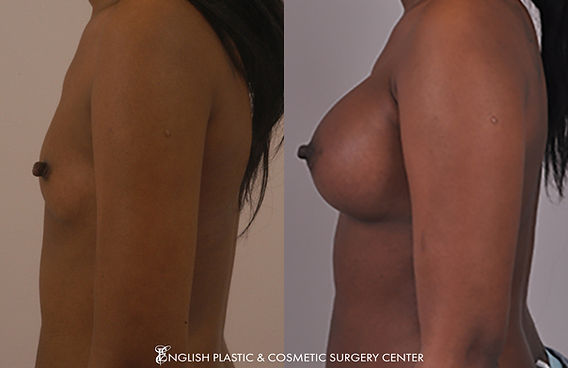Before and after images of a woman after undergoing a breast augmentation (breast implants) by Dr. Jim English at English Plastic & Cosmetic Surgery Center in Little Rock, AR | Case 20