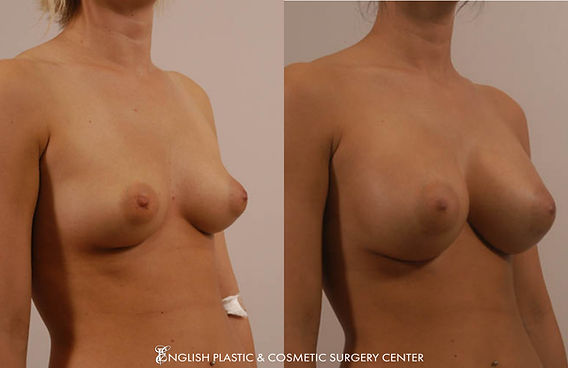 Before and after images of a woman after undergoing a breast augmentation (breast implants) by Dr. Jim English at English Plastic & Cosmetic Surgery Center in Little Rock, AR | Case 2