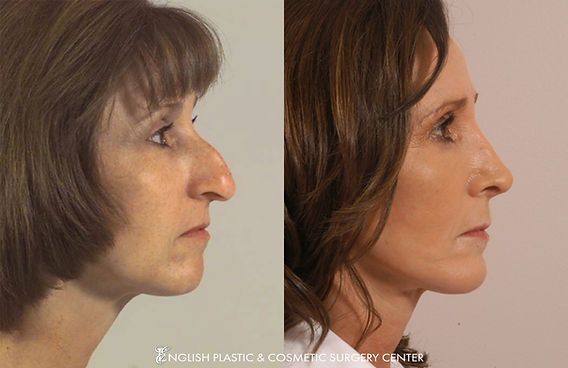 Before and after images of a woman after undergoing nose surgery (rhinoplasty) by Dr. Jim English at English Plastic & Cosmetic Surgery Center in Little Rock, AR | Case 12