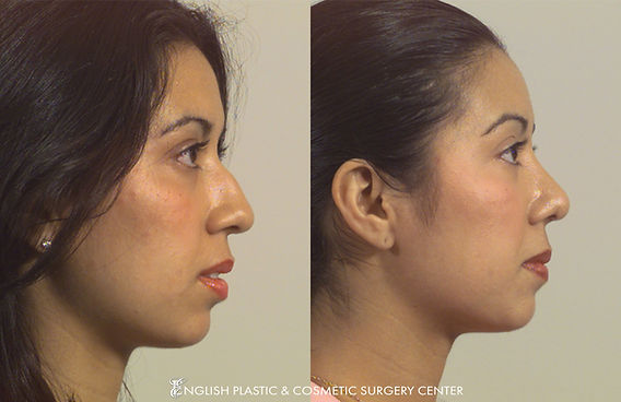 Before and after images of a woman after undergoing a chin augmentation by Dr. Jim English at English Plastic & Cosmetic Surgery Center in Little Rock, AR | Case 8