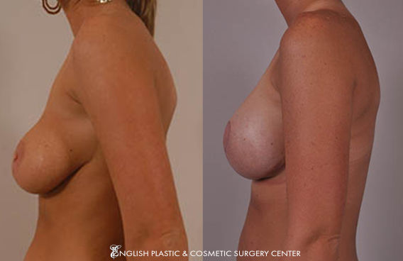 Before and after images of a woman after undergoing a breast lift by Dr. Jim English at English Plastic & Cosmetic Surgery Center in Little Rock, AR | Case 2