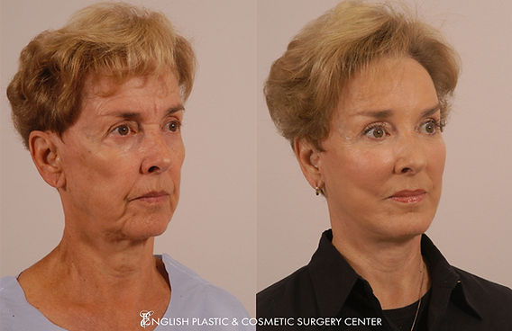 Before and after images of a woman after undergoing eyelid surgery (blepharoplasty) by Dr. Jim English at English Plastic & Cosmetic Surgery Center in Little Rock, AR | Case 14