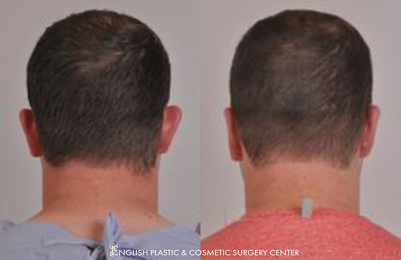 Before and after images of a man after undergoing ear surgery (otoplasty) by Dr. Jim English at English Plastic & Cosmetic Surgery Center in Little Rock, AR | Case 3