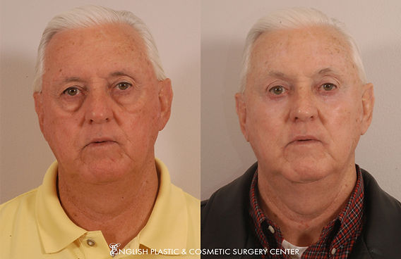 Before and after images of a man after undergoing eyelid surgery (blepharoplasty) by Dr. Jim English at English Plastic & Cosmetic Surgery Center in Little Rock, AR | Case 19