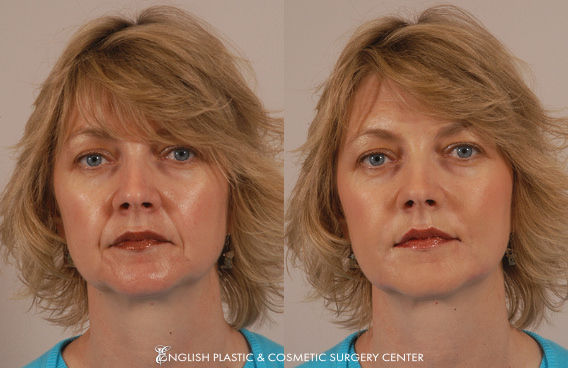Before and after images of a woman after undergoing a filler procedure by Dr. Jim English at English Plastic & Cosmetic Surgery Center in Little Rock, AR | Case 2