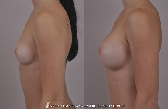 Before and after images of a woman after undergoing a breast augmentation (breast implants) by Dr. Jim English at English Plastic & Cosmetic Surgery Center in Little Rock, AR | Case 14