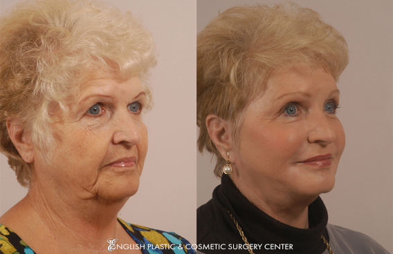 Before and after images of a woman after undergoing eyelid surgery (blepharoplasty) by Dr. Jim English at English Plastic & Cosmetic Surgery Center in Little Rock, AR | Case 15