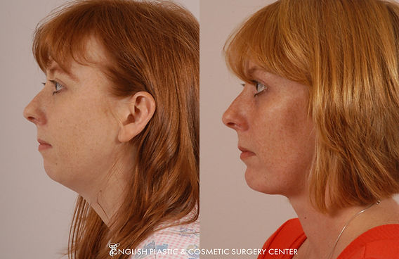 Before and after images of a woman after undergoing a chin augmentation by Dr. Jim English at English Plastic & Cosmetic Surgery Center in Little Rock, AR | Case 18