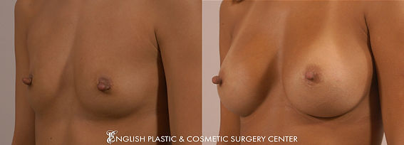 Before and after images of a woman after undergoing a breast augmentation (breast implants) by Dr. Jim English at English Plastic & Cosmetic Surgery Center in Little Rock, AR | Case 21