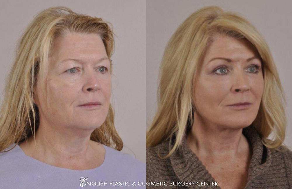 Before and after images of Dr. English's patient after undergoing a facelift procedure. | English Plastic and Cosmetic Surgery Center