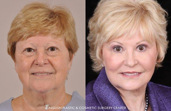 Front view of woman who underwent facelift, neck lift, brow lift, eyeli surgery (blepharoplasty), facial liposuction, fat transfer, chemical peel, surgical dermabrasion by Dr. Jim English in Little Rock, AR.