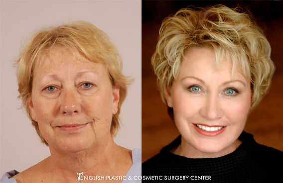 Before and after images of a woman after undergoing a facelift by Dr. Jim English at English Plastic & Cosmetic Surgery Center in Little Rock, AR | Case 13