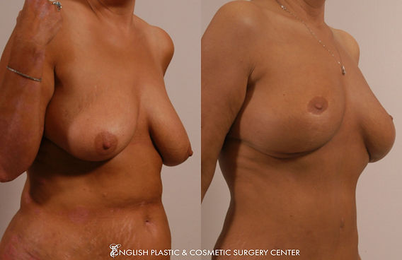 Before and after images of a woman after undergoing a breast lift by Dr. Jim English at English Plastic & Cosmetic Surgery Center in Little Rock, AR | Case 3