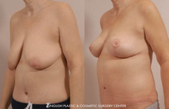 Before and after images of a woman after undergoing a breast lift by Dr. Jim English at English Plastic & Cosmetic Surgery Center in Little Rock, AR | Case 1
