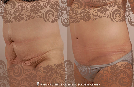Before and after images of a woman after undergoing a tummy tuck (abdominoplasty) by Dr. Jim English at English Plastic & Cosmetic Surgery Center in Little Rock, AR | Case 6