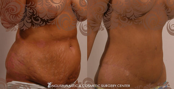 Before and after images of a woman after undergoing a tummy tuck (abdominoplasty) by Dr. Jim English at English Plastic & Cosmetic Surgery Center in Little Rock, AR | Case 7