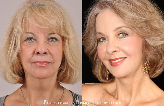 Before and after images of a woman after undergoing a facelift, brow lift, eyelid surgery, liposuction, fat transfer, chemical peel, and dermabrasion by Dr. Jim English at English Plastic & Cosmetic Surgery Center in Little Rock, AR | Case 161
