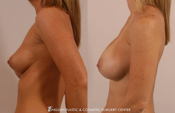 Before and after images of a woman after undergoing a breast augmentation (breast implants) by Dr. Jim English at English Plastic & Cosmetic Surgery Center in Little Rock, AR | Case 5