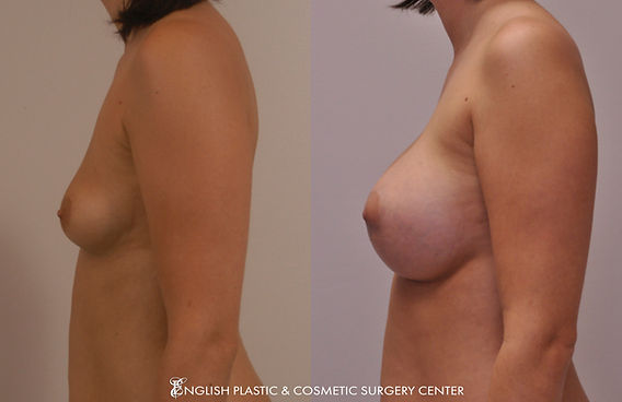 Before and after images of a woman after undergoing a breast augmentation (breast implants) by Dr. Jim English at English Plastic & Cosmetic Surgery Center in Little Rock, AR | Case 13