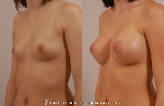 Before and after images of a woman after undergoing a breast augmentation (breast implants) by Dr. Jim English at English Plastic & Cosmetic Surgery Center in Little Rock, AR | Case 8